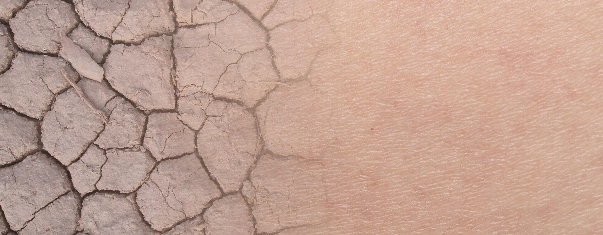 Trockene Haut Ursachen Tipps Pflege Mit Linolsäure