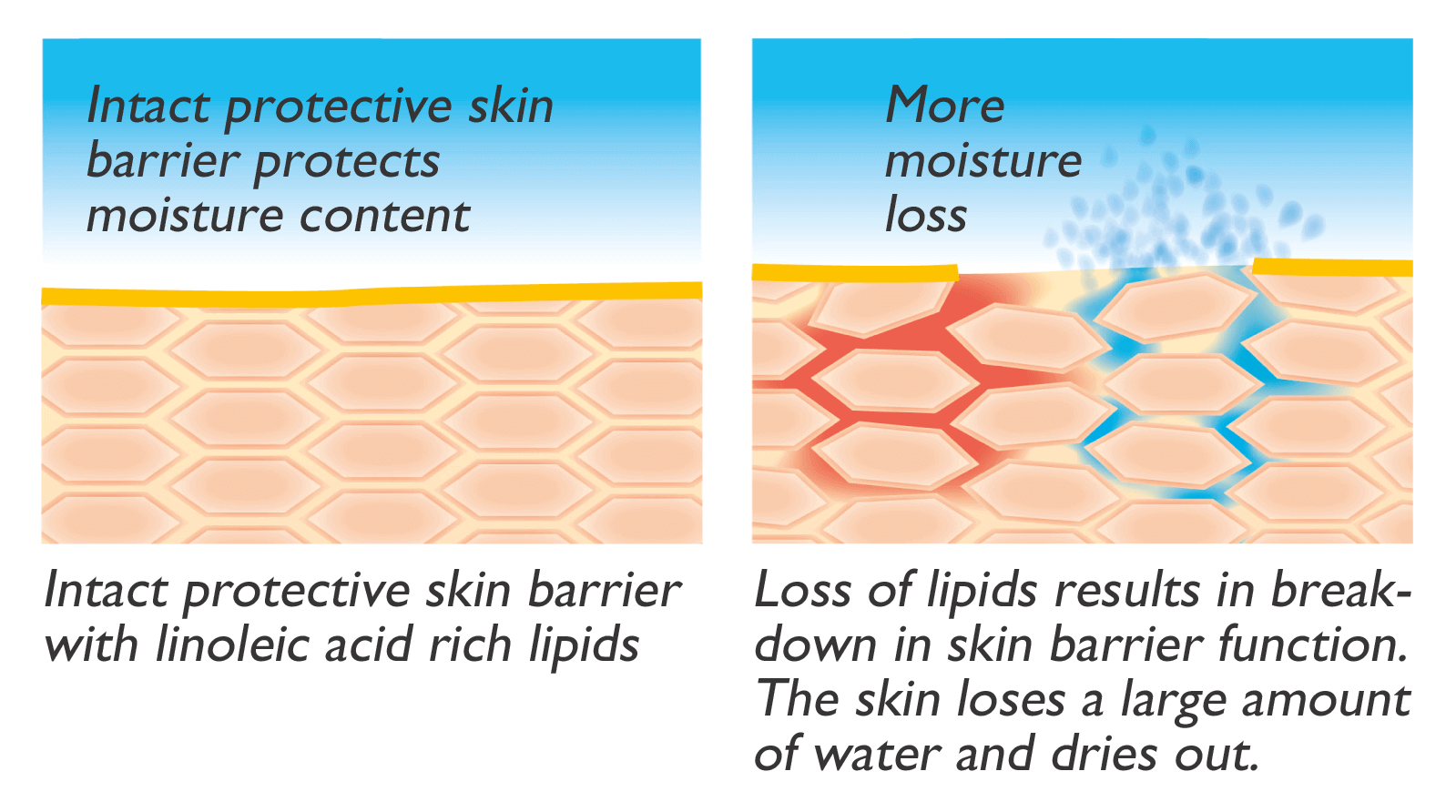 if, however, the structural lipids and moisture retention factors are  stripped away due to frequent bathing, showering or swimming, or are no  longer